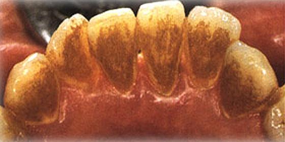 Verfärbung Zähne Entfernen